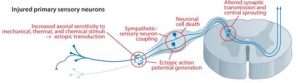 Figure 4: Changes occuring in intact neurons and DRGs (Costigan M, 2009)